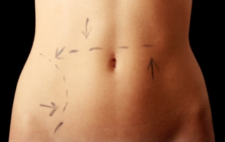 Caucasian woman's abdomen marked with lines