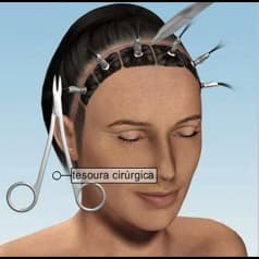 lifting frontal - tesoura