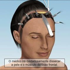 lifting frontal - abertura